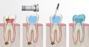 tratamientos-dentales-endodoncia-02